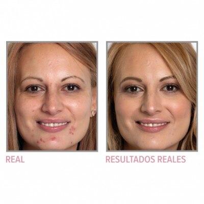 IT Cosmetics IT Cosmetics Estuche IT Cosmetics la Mejor Versión de ti - Maquillaje y Tratamiento