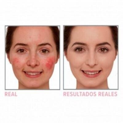 IT Cosmetics IT COSMETICS Bye Bye Redness™ Crema Hidratante Correctora