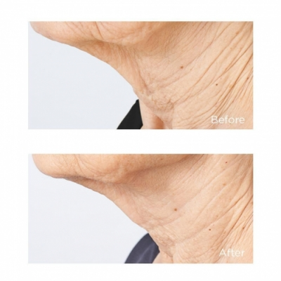 Perricone Perricone MD Cold Plasma Plus Sub-D/Neck - Tratamiento Antiedad para Cuello
